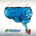 Acrylic Brain & Tap Model
